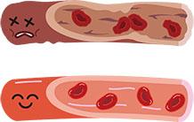 血糖、血圧の高い方!動脈硬化度検査
